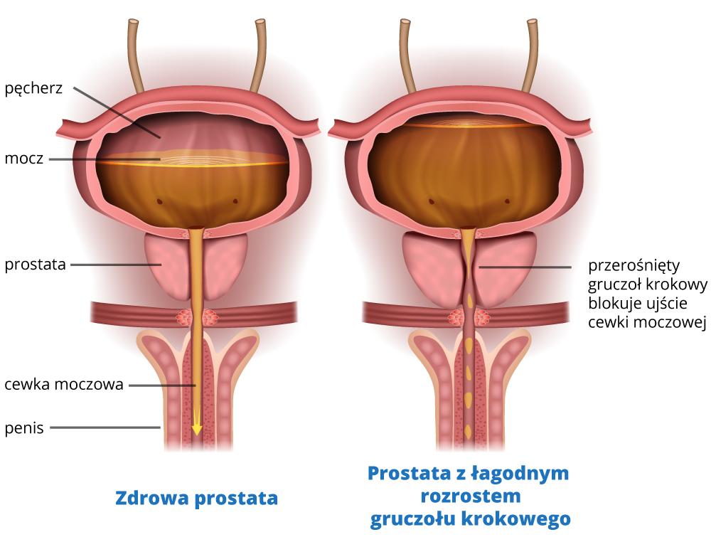prezerost-prostaty